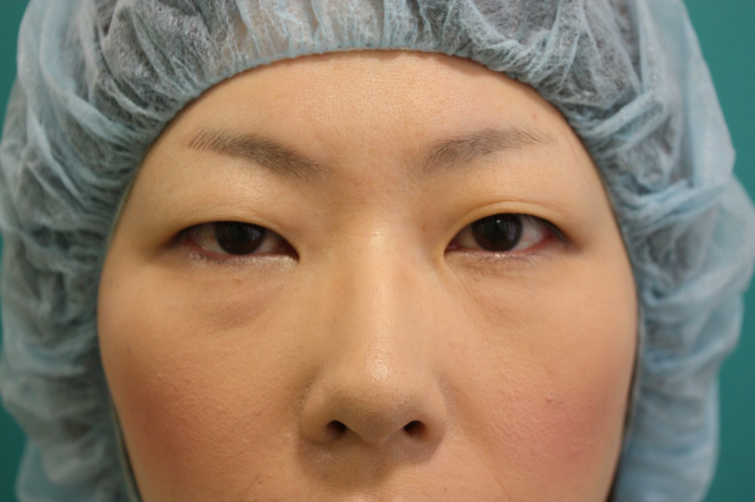 double eyelid suturing technique 1