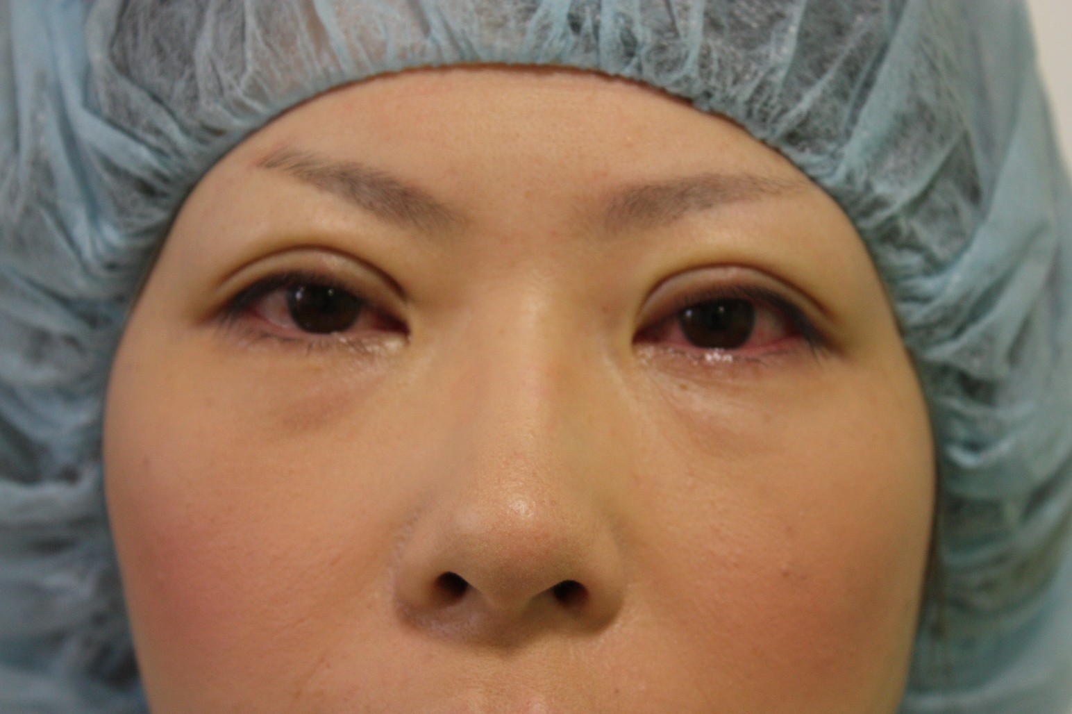 double eyelid suturing technique5