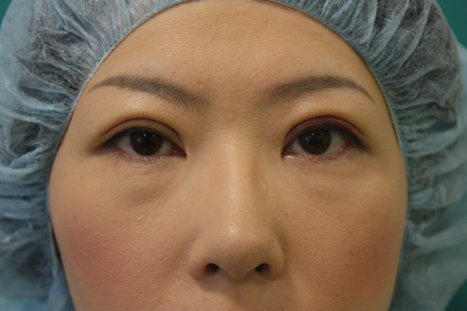 double eyelid suturing technique6