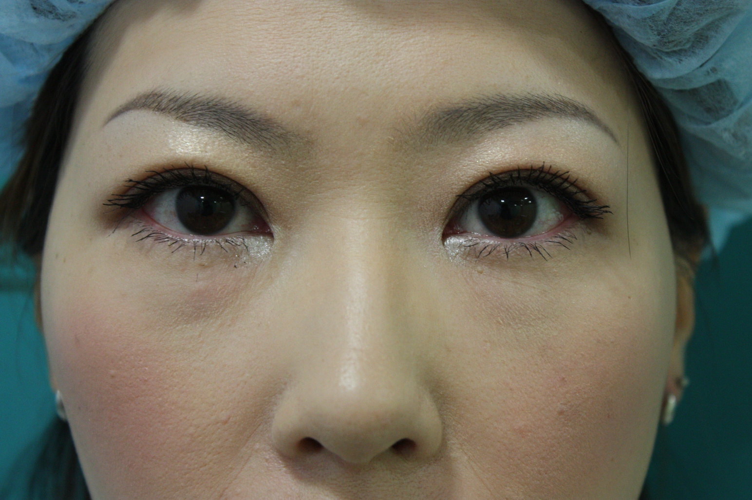 double eyelid suturing technique7