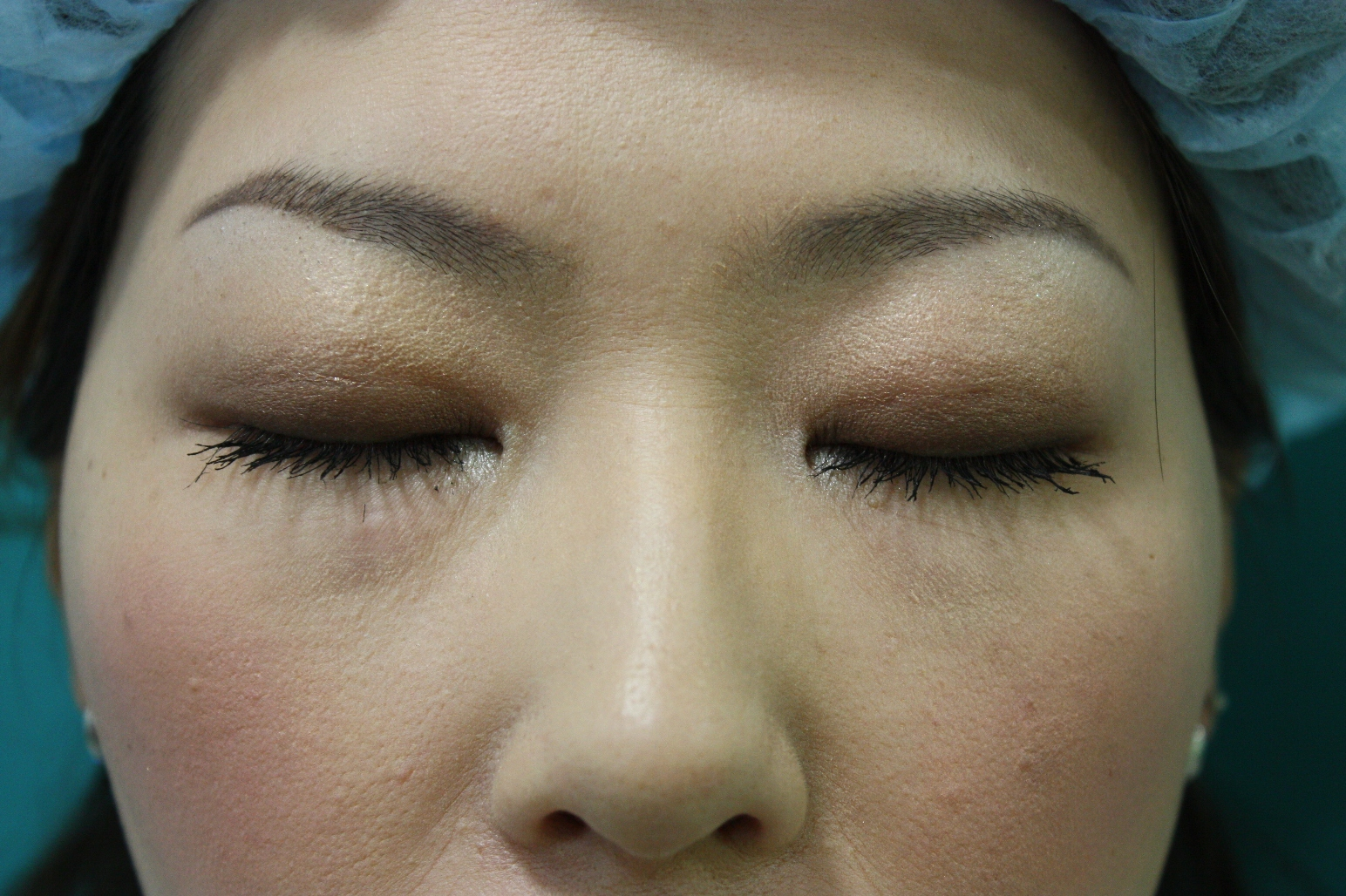 double eyelid suturing technique8