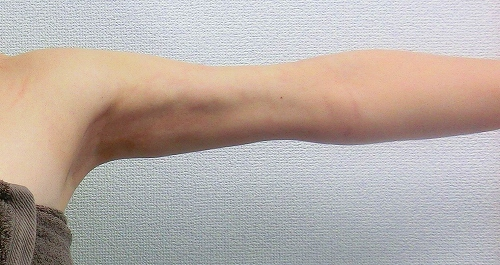 二の腕脂肪吸引後10