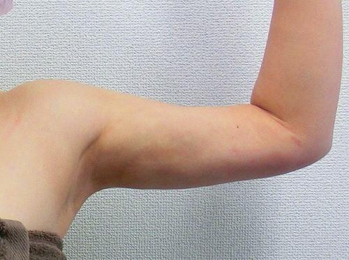 二の腕脂肪吸引後8