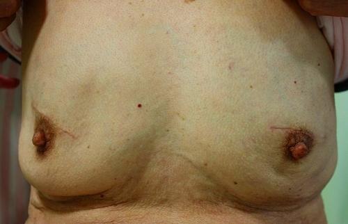 液体シリコン除去手術後1