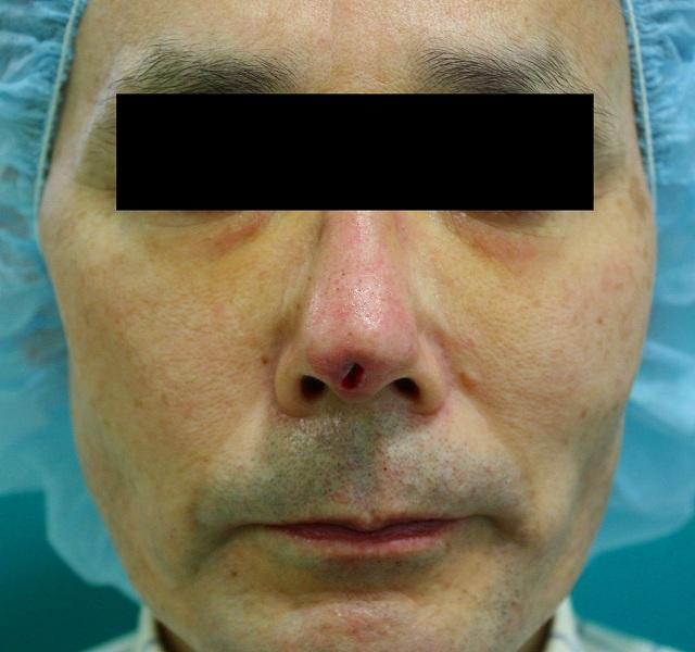 鼻プロテーゼ修正後1