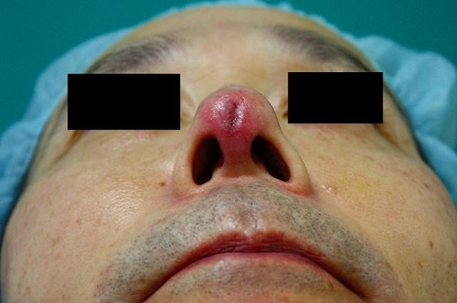 鼻プロテーゼ修正後1W