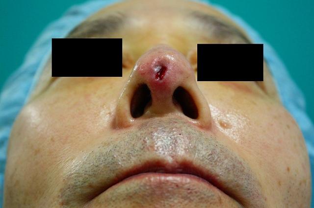 鼻プロテーゼ修正後2