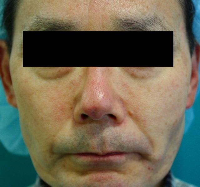 鼻プロテーゼ修正後5M1