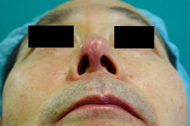 鼻プロテーゼ修正後5M2