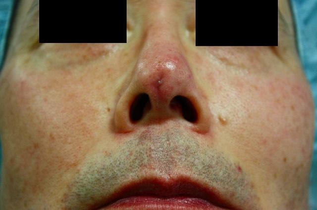 鼻プロテーゼ修正後5W
