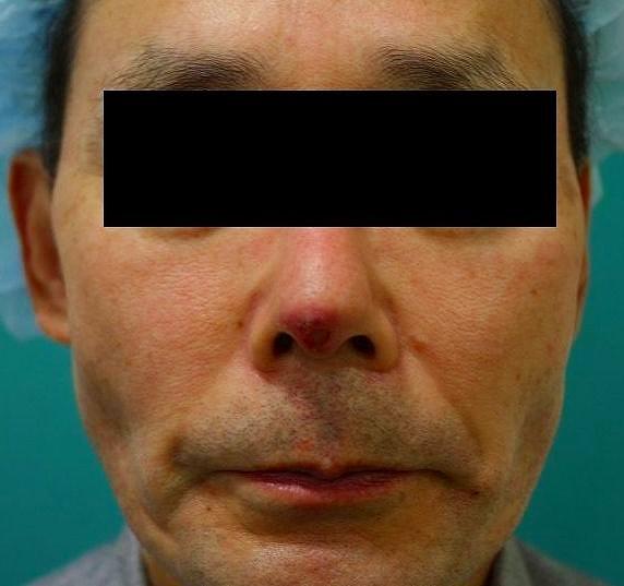 鼻プロテーゼ修正前1