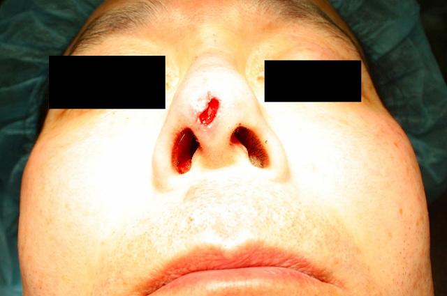 鼻プロテーゼ修正直後