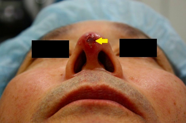 鼻プロテーゼ修正前印