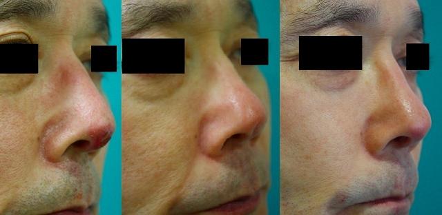 鼻プロテーゼ修正