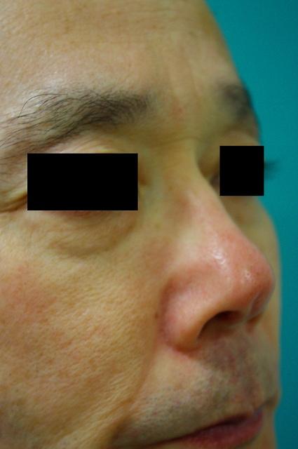 鼻プロテーゼ修正11.2a