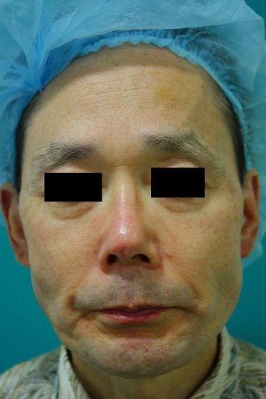 鼻プロテーゼ修正前正面