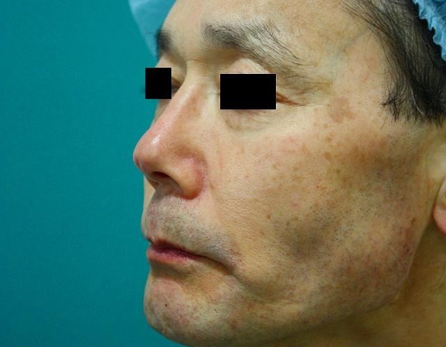 鼻プロテーゼ修正前左斜