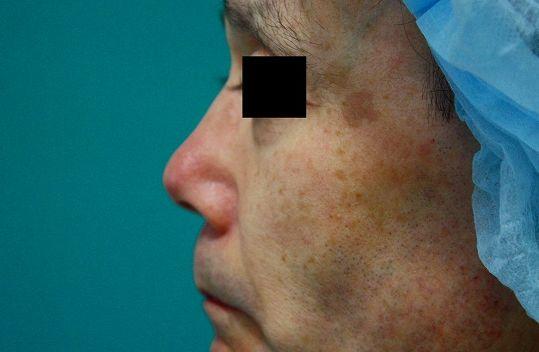 鼻プロテーゼ修正前左側