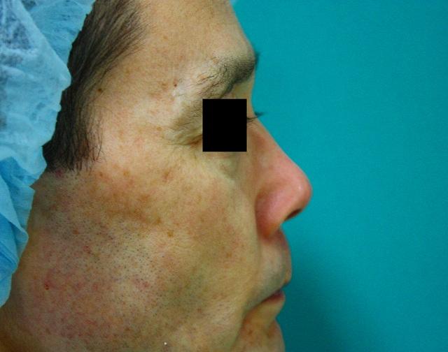 鼻プロテーゼ修正前右側