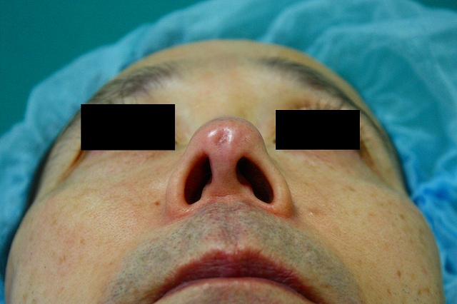 鼻プロテーゼ修正11.2b