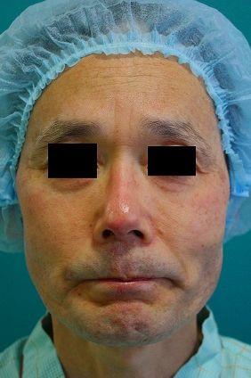 鼻プロテーゼ修正後正面