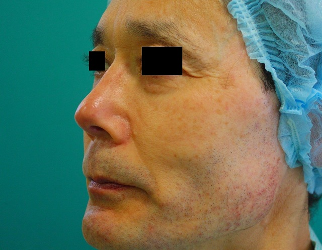 鼻プロテーゼ修正後左斜
