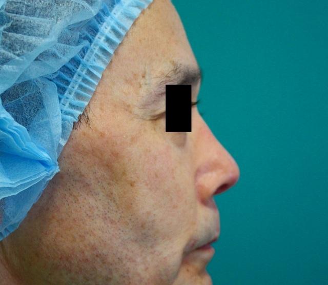鼻プロテーゼ修正後右側