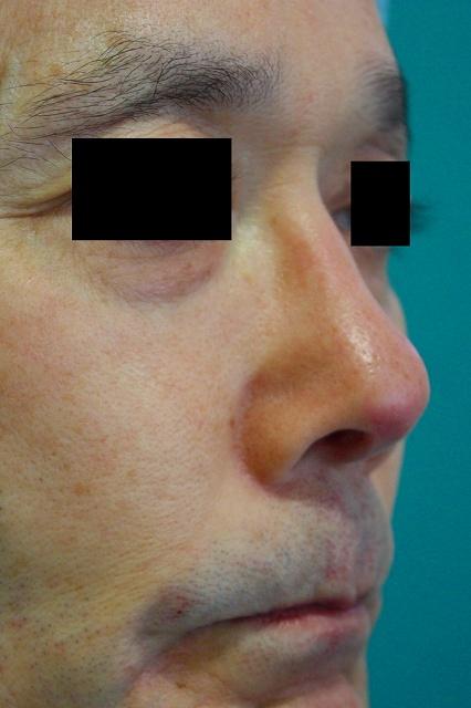 鼻プロテーゼ修正後右斜
