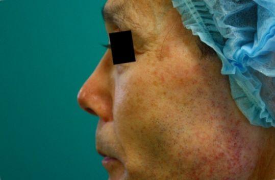 鼻プロテーゼ修正後左側