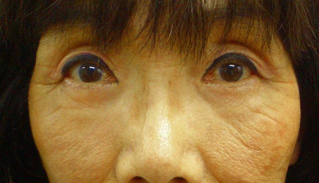 鼻バイオアルカミド術後0