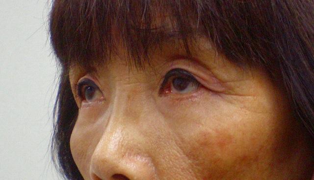 鼻バイオアルカミド術後1