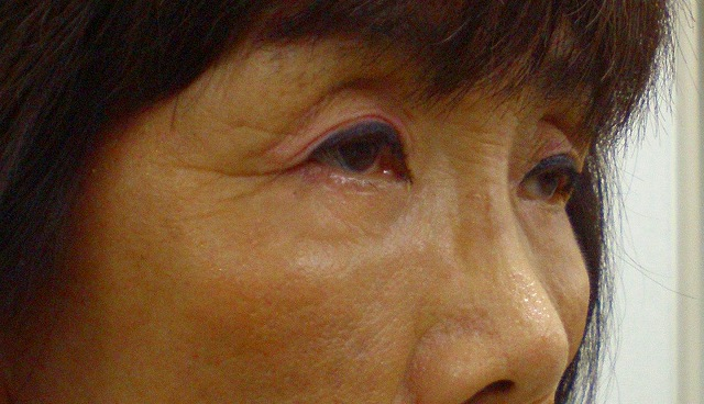 鼻バイオアルカミド術後2