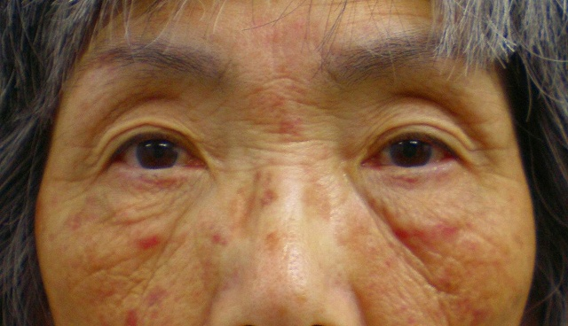鼻バイオアルカミド術前0