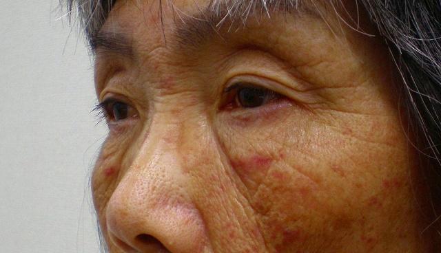 鼻バイオアルカミド術前1