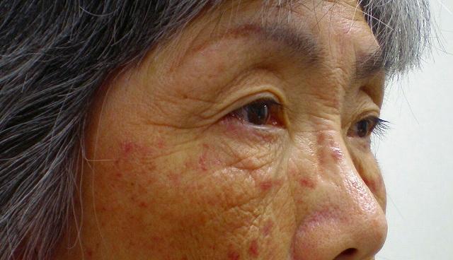 鼻バイオアルカミド術前2