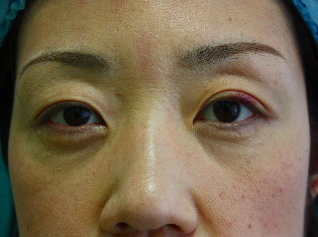 目の下のくま脂肪除去後1