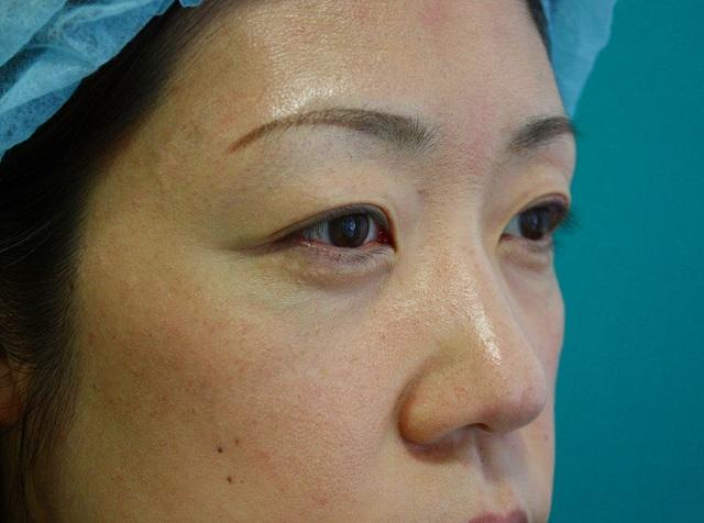 目の下のくま脂肪除去後2