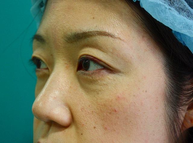 目の下のくま脂肪除去後3