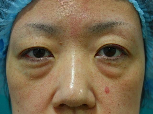 目の下のくま脂肪除去前1