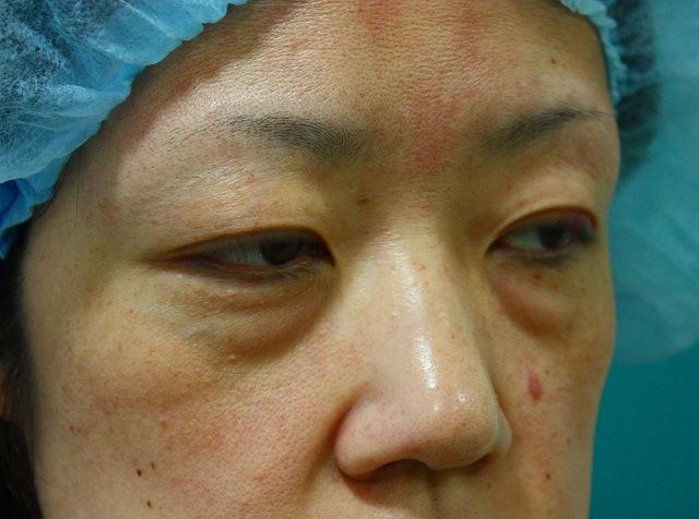 目の下のくま脂肪除去前2