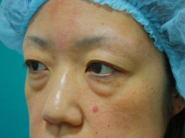 目の下のくま脂肪除去前3