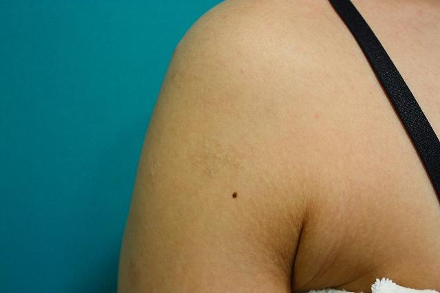 刺青治療前