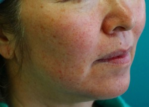 Ultherapy before