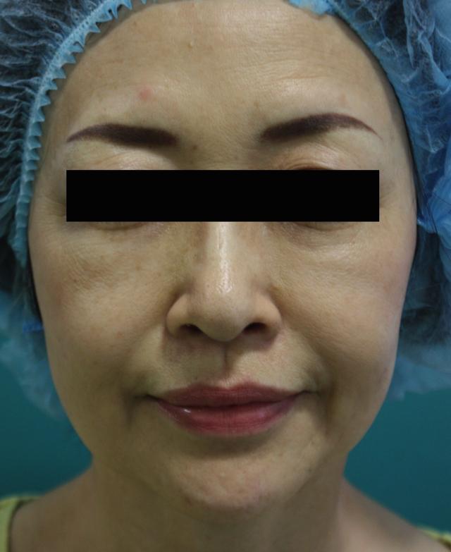 ウルセラ治療後3か月(正面)