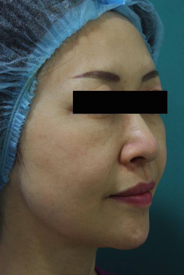 ウルセラ治療3か月(斜め)