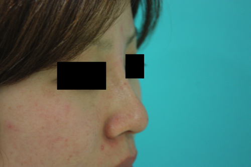 鼻プチ整形後横2