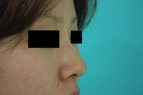 鼻プチ整形前横2