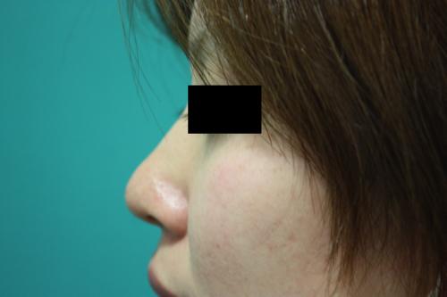 鼻プチ整形前横1