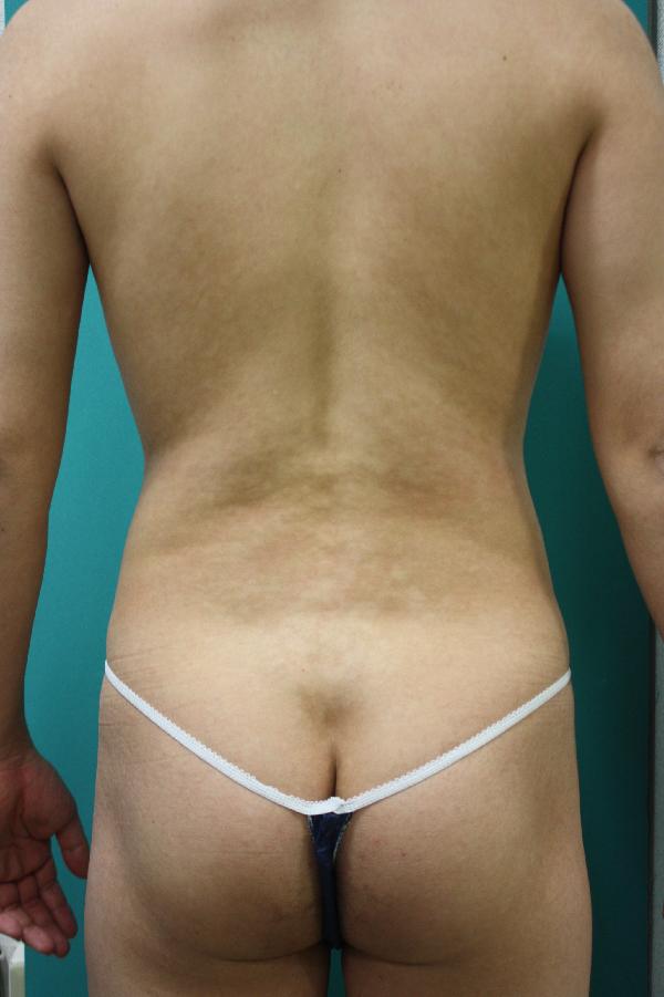 エクセル4回治療後背中