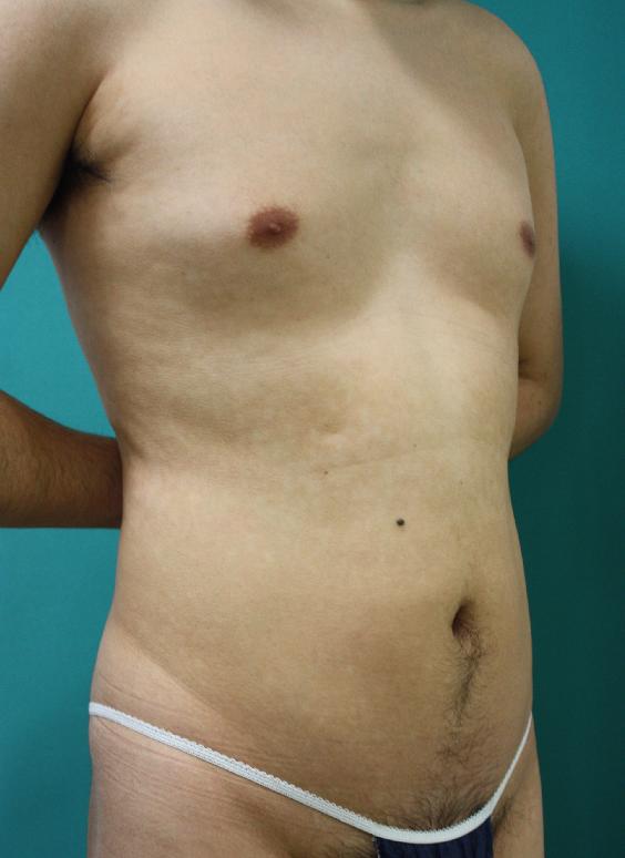 エクセル治療後左向き2